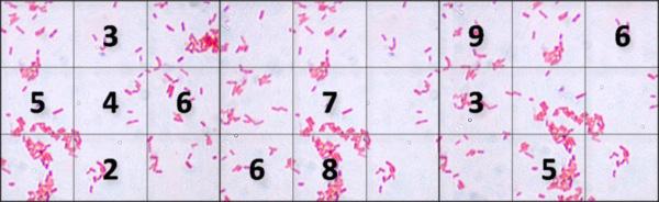 Coli Sudoku