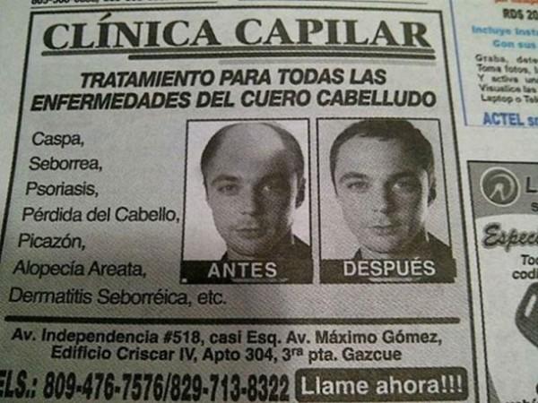 Sheldon Cooper - Glatze